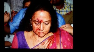 Actress Hema Malini's Mercedes met with an Accident on Thursday 1 Child Died and 4 People Injured