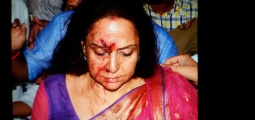 Hema Malini injured car accident